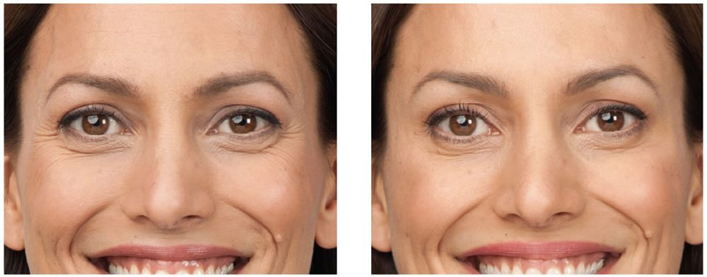 Botox Before and After - RVC Medical of Issaquah