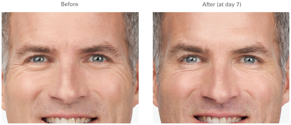 Crows Feet Before and After - RVC Medical of Issaquah