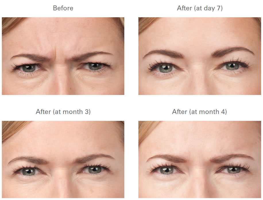 Botox Frown Line Before and After Photos