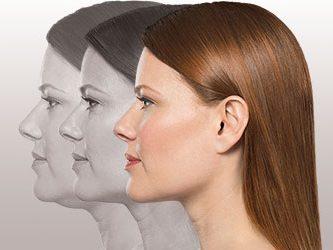 Chin Forward with Kybella®