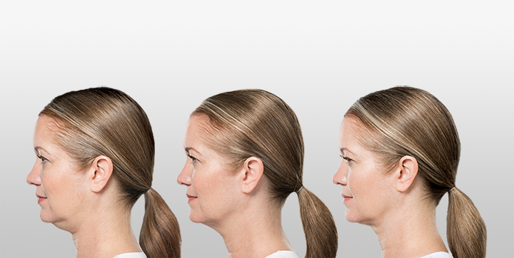 Bye-Bye Double Chin: Two Breakthrough Non-surgical Treatments That Will Amaze!
