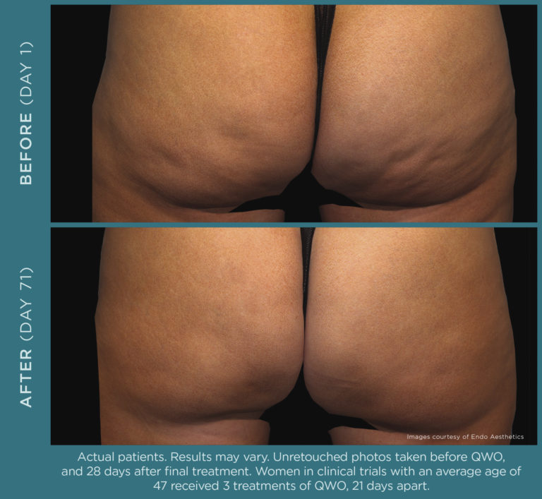 Qwo injectable for moderate to severe cellulite in the buttocks.